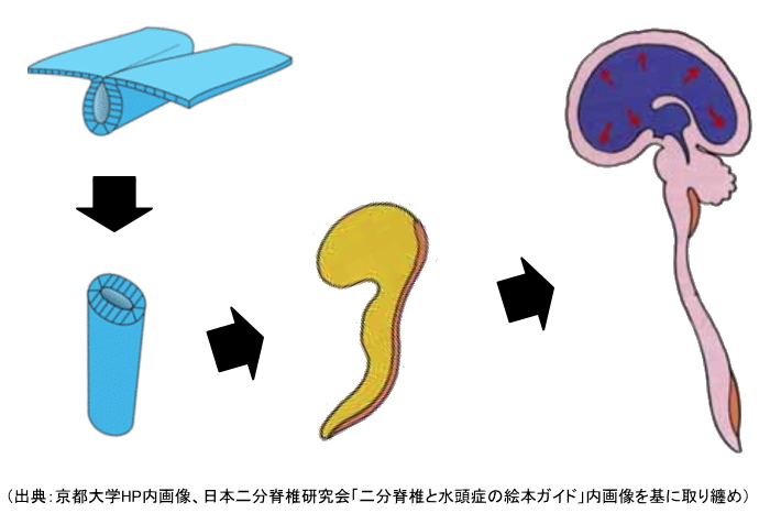 神経管が脳、脊髄になるまでのプロセスを説明する図解
