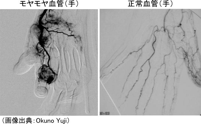 手のモヤモヤ血管と正常血管