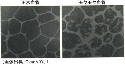 正常血管とモヤモヤ血管のインク実験