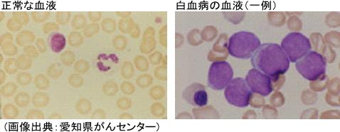 正常な血液と白血病の血液
