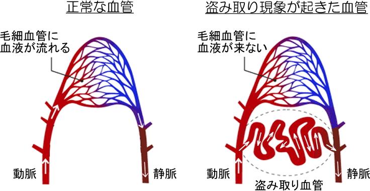 正常な血管と盗み取り現象が起きた血管