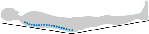 柔らかすぎる布団に寝た場合の背骨の形(S字カーブが保てない)