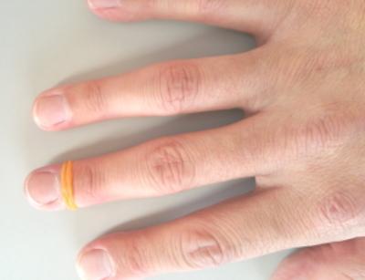輪ゴムを用いて鉛筆の持ち方を矯正する場合の輪ゴムの位置